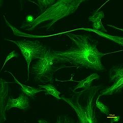 緑色蛍光顕微鏡による緑色蛍光観察画像