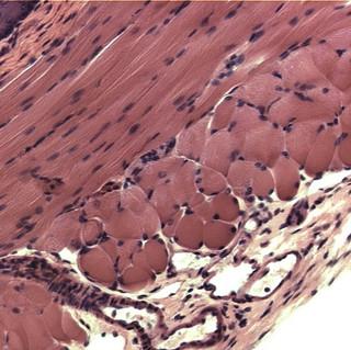 Dog-esophagus-134.jpg