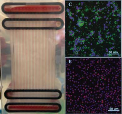 細胞観察-キメラ抗原受容体(CAR)T細胞の精製 と血小板除去用のマイクロ流体デバイス