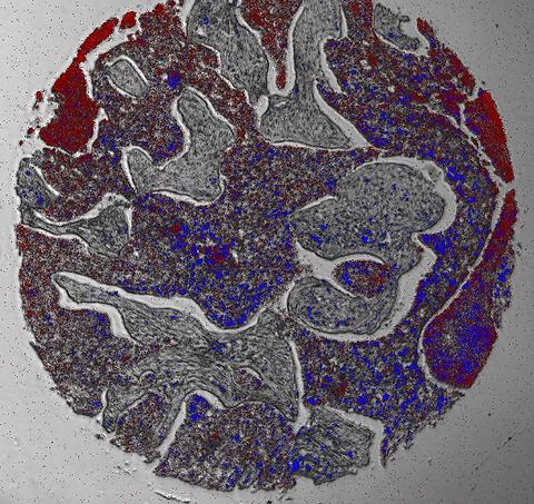 インキュベーター蛍光顕微鏡画像例 バイオプシー