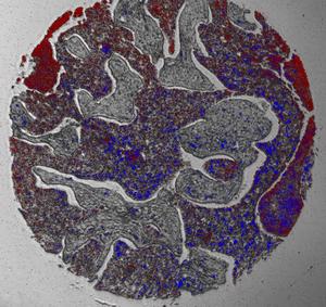 2種類のmRNAを示す組織バイオプシー