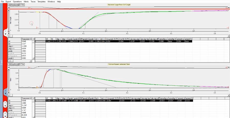 心筋細胞収縮性・カルシウム測定システム解析ソフト(IonWizard)