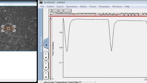 IonOptix の新製品 CytoMotion(iPS心筋細胞収縮性解析)