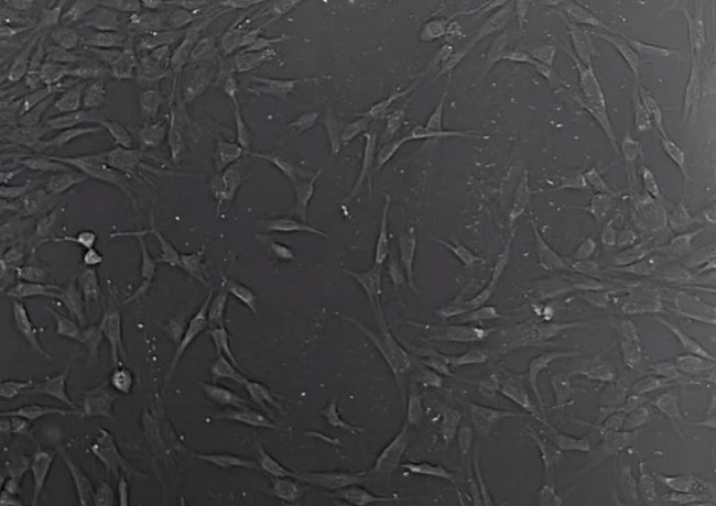 cell-imaging-03-Migration of MSC in 2D C