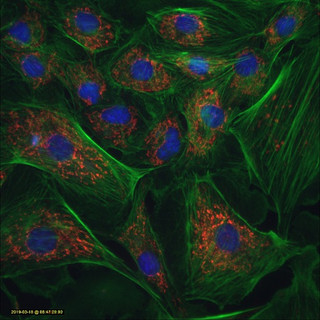 Red mitochondria.jpg