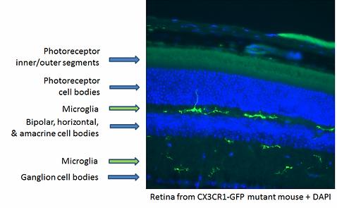 細胞観察-マウスの内網状層と外網状層中の網膜組織のミクログリア