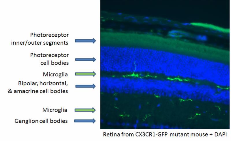 マウスの内網状層と外網状層中の網膜組織のミクログリア