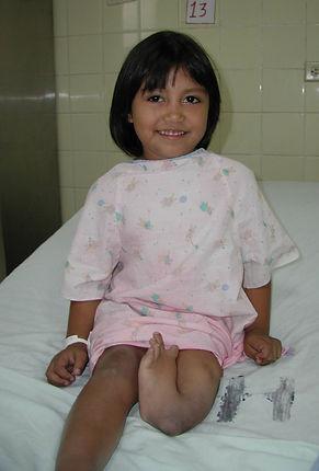 Tibial Hemimelia,  tibia deficiency
