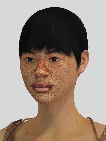 Freckles / Pigmentation