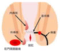肛門疾患.JPG