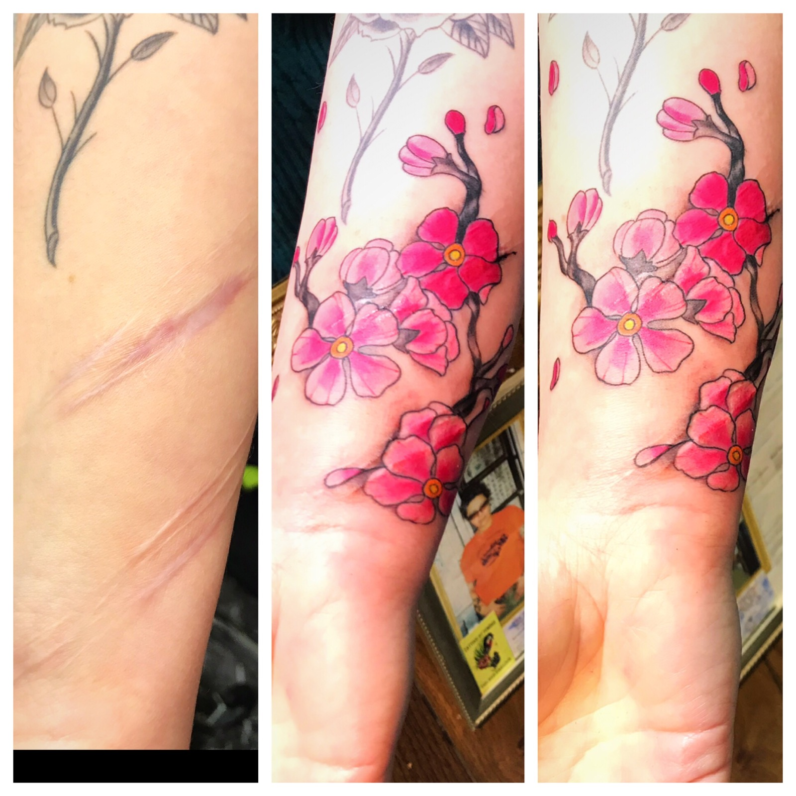 Tattoo Cover Up Scars with Cherry Blosso