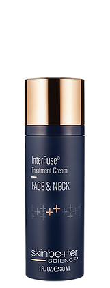 InterFuse Treatment Cream FACE & NECK