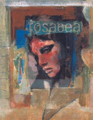 Rocacea