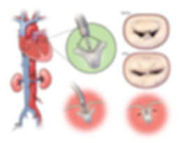 mitral valve surgery, mitral valve repair, minimally invasive heart surgery, minimally invasive mitral valve repair, mitral valve repair surgery,mitral valve replacement surgery, minimally invasive mitral valve surgery, minimally invasive heart valve surgery, minimally invasive aortic valve surgery, minimally invasive heart valve replacement, mitral valve repair recovery, minimally invasive valve replacement,  minimally invasive aortic valve replacement surgery, minimally invasive mitral valve replacement, mitral valve repair complications, valve surgery, non invasive valve replacement, non invasive heart valve replacement, minimally invasive mitral valve repair surgery, minimally invasive heart valve replacement surgery, aortic valve replacement minimally invasive, minimally invasive mitral valve repair recovery,  mitral valve repair recovery time, non invasive aortic valve replacement, mitral valve surgery recovery time, minimally invasive aortic valve repair