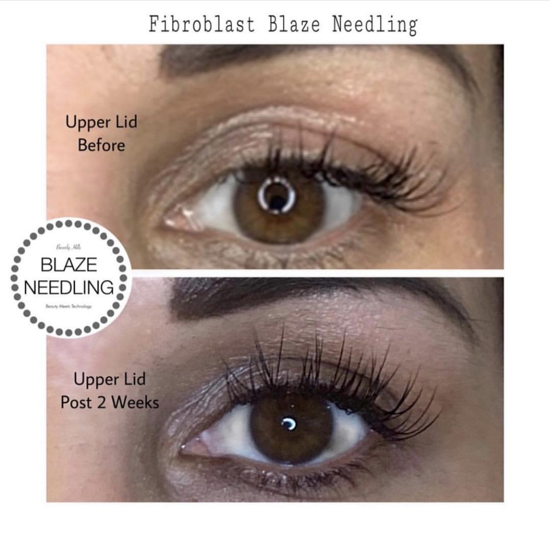 Fibroblast eyelid
