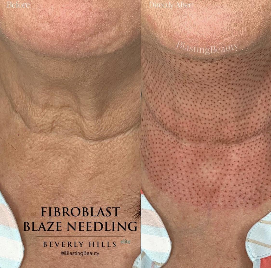 Fibroblast Neck