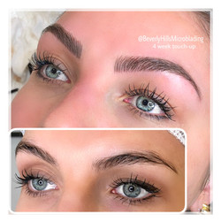 Beverly Hills Microblading