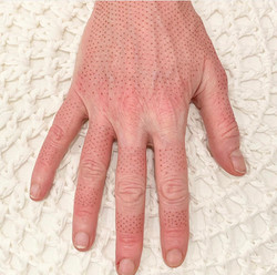 Fibroblast Hands