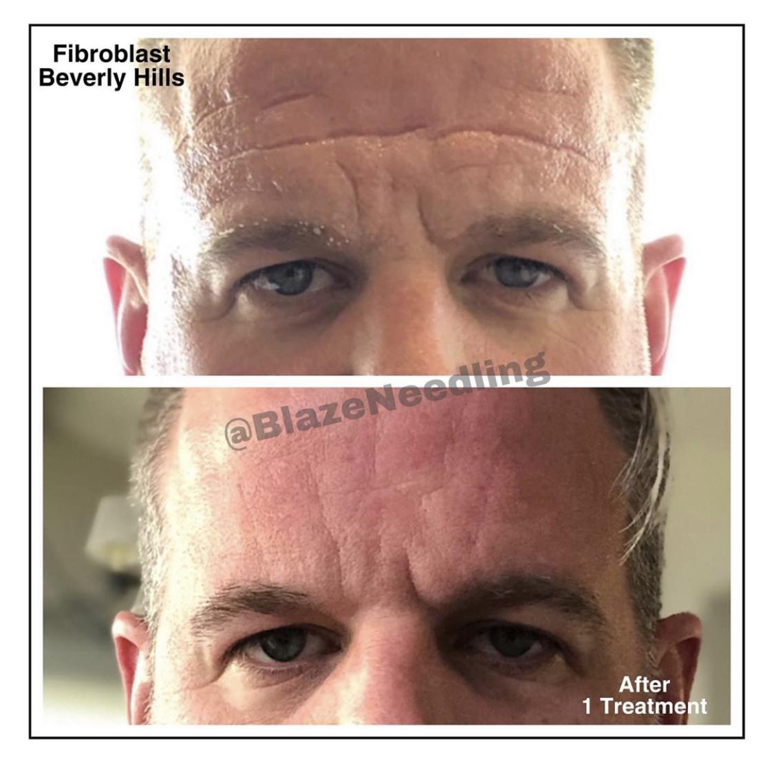 Fibroblast Forehead