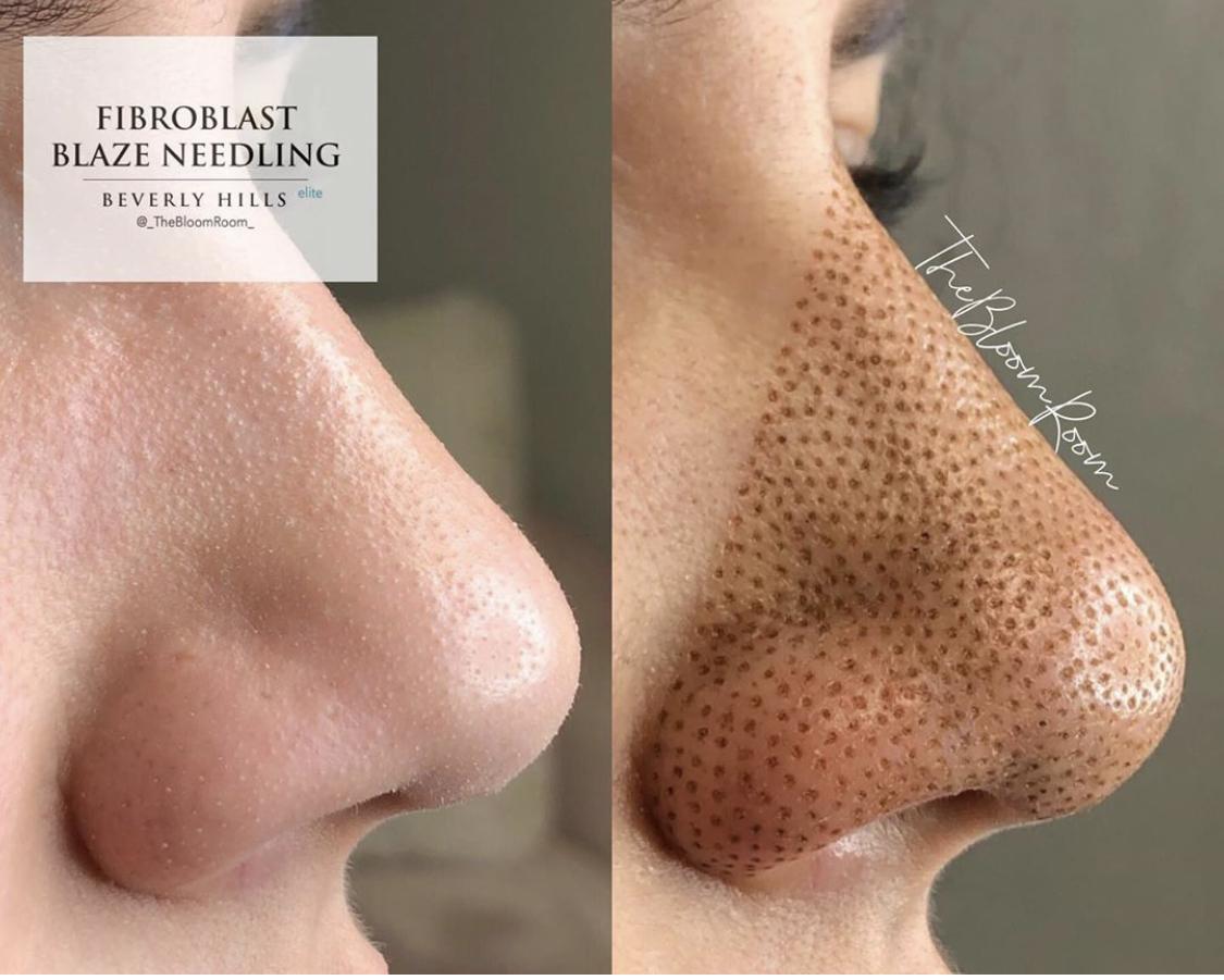 Fibroblast Nose
