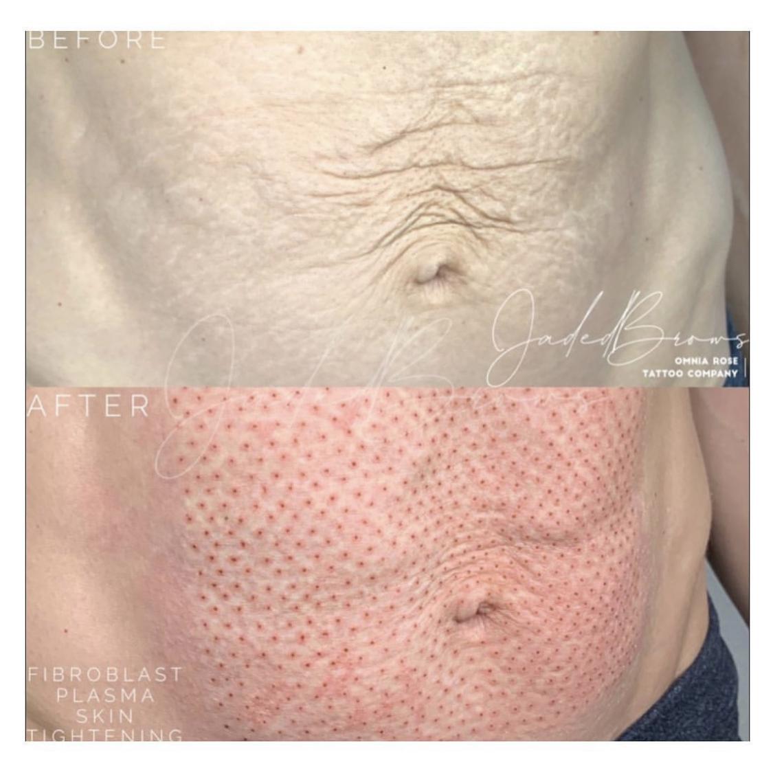 Fibroblast stomach