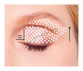 Fibroblast Upper Eyelid.jpg