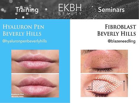 Hyaluron Pen Beverly Hills