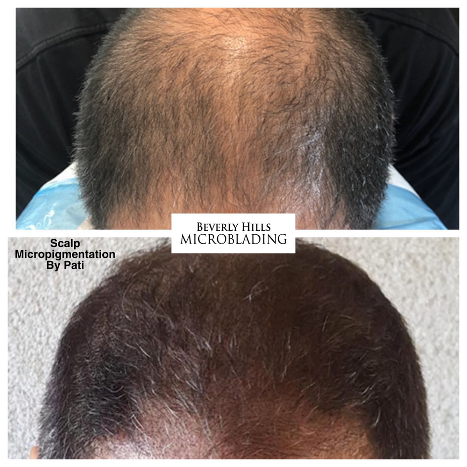 Scalp Micropigmentation Beverly Hills