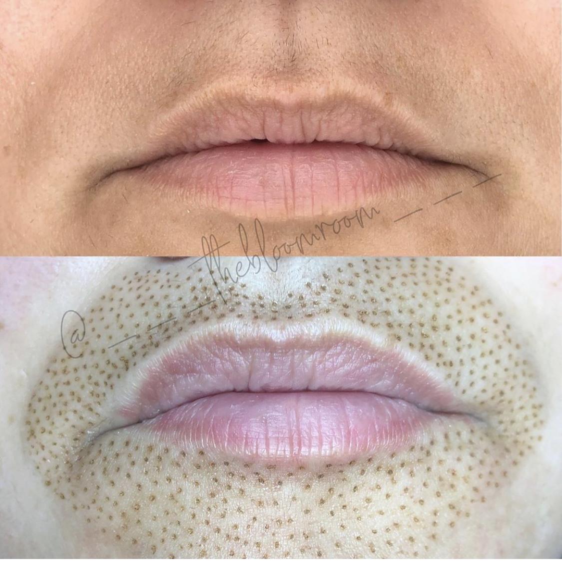 Fibroblast Lip Flip