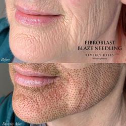 Fibroblast Lower face