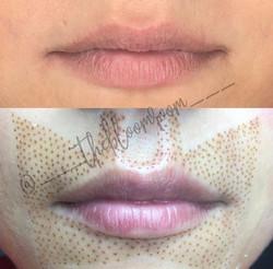 Fibroblast Lip