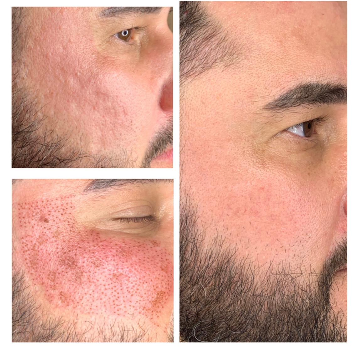 Fibroblast Acne Scarring