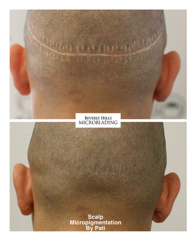 Scalp Micropigmentation Beverly Hills