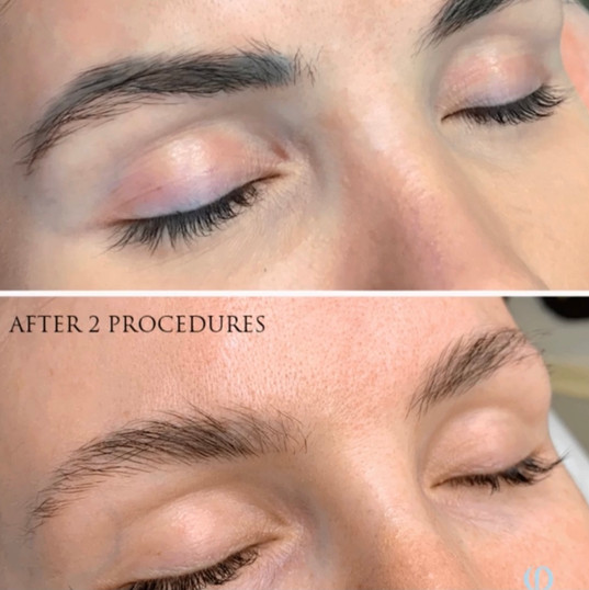 Brow Tatoo Removal