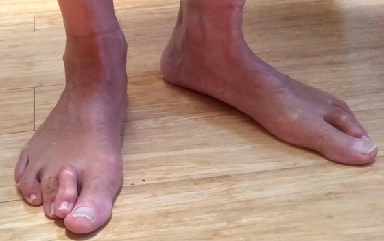 What is Pronation, and What Kinds of Running Shoes Should I Get if I Overpronate or Have Flat Feet?