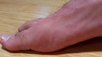 What to Do About Big Toe Joint Pain/Hallux Limitus