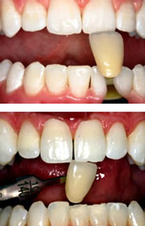 professional-teeth-whitening-bleach.jpg