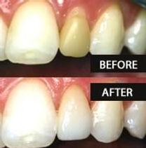tooth-crown.jpg