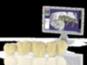 Digital Scan screen and bridge