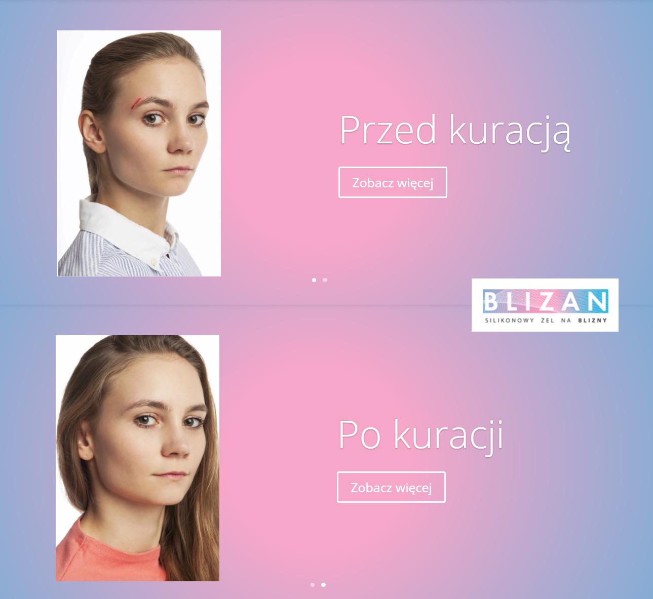 Blizan