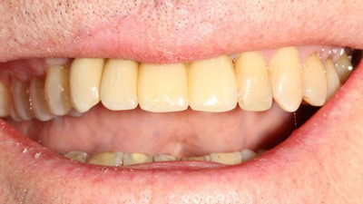 Implants All Ceramic Crowns after_YanHIy