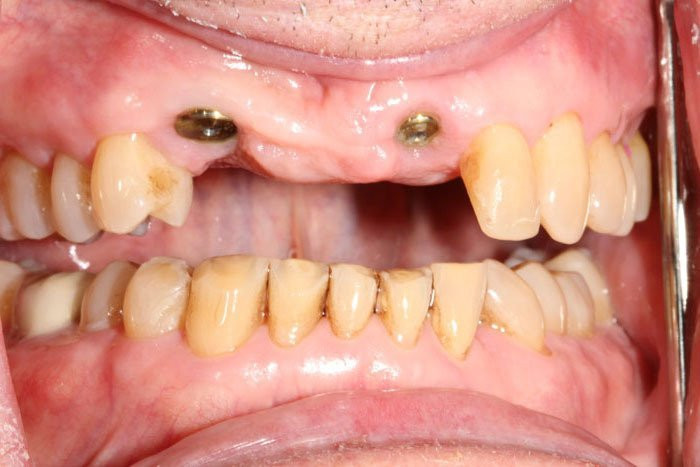 Implants All Ceramic Crowns before_NFyPA