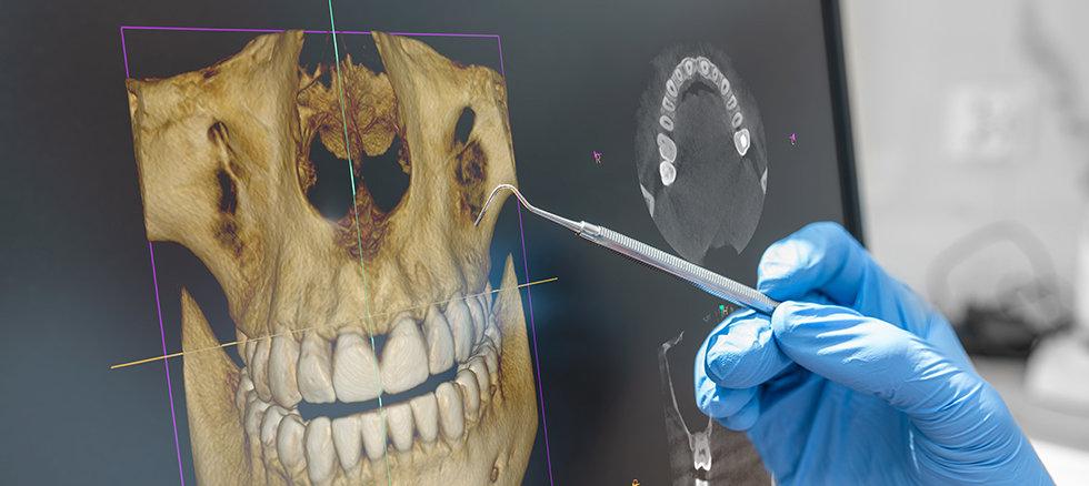 DFC-3D imaging.jpg