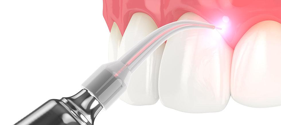 DFC-Laser dentistry.jpg