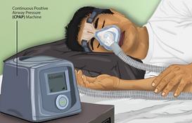290px-Depiction_of_a_Sleep_Apnea_patient