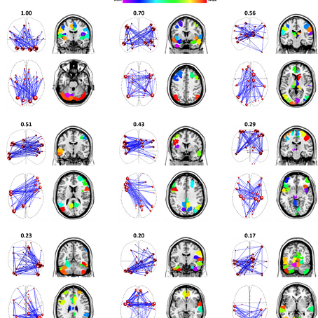 Dynamic fMRI networks predict success in a behavioral weight loss program among older adults
