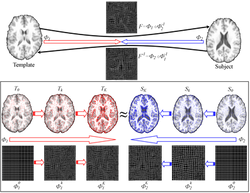 Symmetric image registration