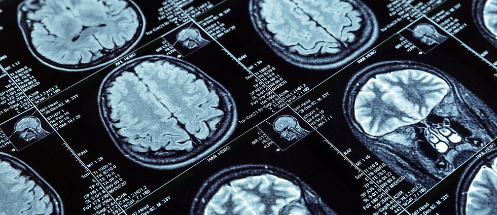 Traumatic Brain Injury Lawyer NJ - Rinal