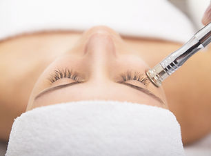 Microdermabrasion-The-process-to-younger