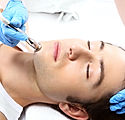 Microdermabrasion-Facial-for-Men-Perth.j